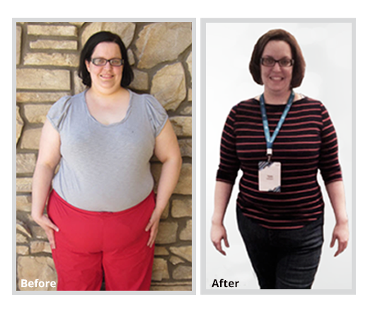 Teri is an amazing mommy of 4! She wanted to be an example for her kids. She never gave up. Teri lost 80lbs.