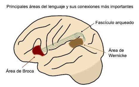 Trastornos del lenguaje debidos a lesiones cerebrales: afasias ...