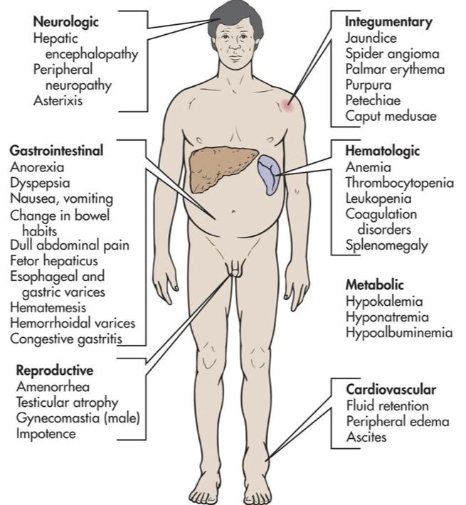 http://liverbasics/sclerosis-of-the-liver.html scarring of, Human Body