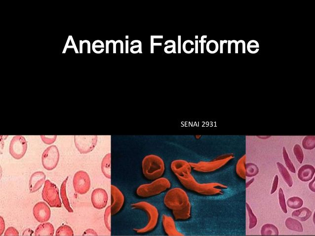 Anemia Falciforme Sickle Cell Anemia