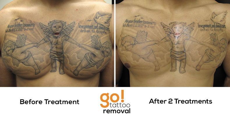 After 2 Laser Tattoo Removal Treatments We Have Great Progress On This Chest Piece Removal Shading Typical Fades Tattoo Removal Laser Tattoo Removal Tattoos