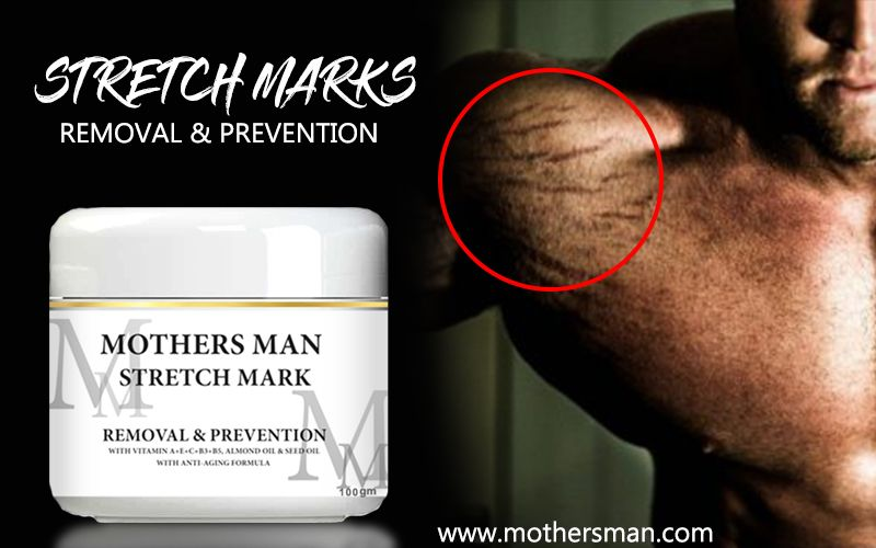 Best Stretch Marks Removal Cream Online Mothers Man Marks