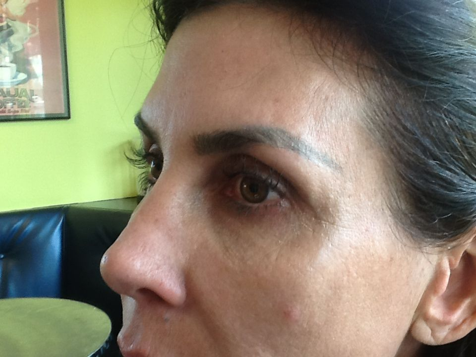 One year later, long, long Li Lash lashes. No mascara, no curler. Nada. LiLash does not have any contraindications, last 6 months plus and is the same price as a 30 day supply of Latisse.  LiLashamania ! Notice the side view of the right eye, nothing but LiLash.
