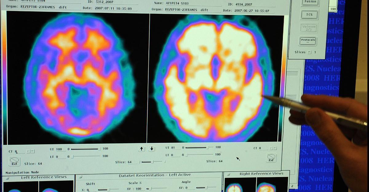 Jetzt lesen:  http://ift.tt/2v97rMn Krasse Fehldiagnosen - Verdacht auf Alzheimer? In vielen Fällen steckt in Wahrheit etwas anderes dahinter #aktuell