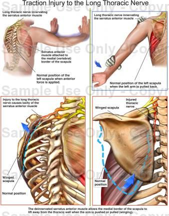 Click to enlarge | Anatomy | Pinterest | Medical, Exercise ...