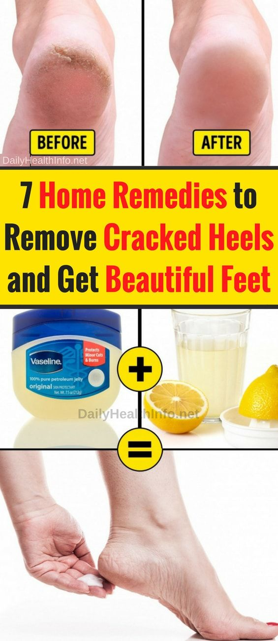 Dry Cracked Feet And How To Fix Them Steve Needs To Do This Cracked Feet Remedies Dry Feet Remedies Dry Skin On Feet