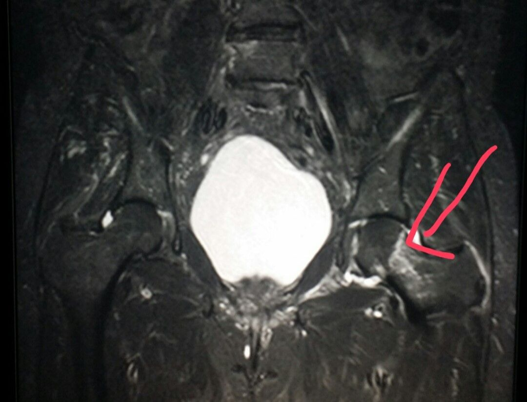 Pelvis #MRI shows a #hip #fracture in a #patient who #fell ...