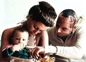 niki lauda with wife marlene and their son shortly after the near fatal crash in 1976 history. Black Bedroom Furniture Sets. Home Design Ideas