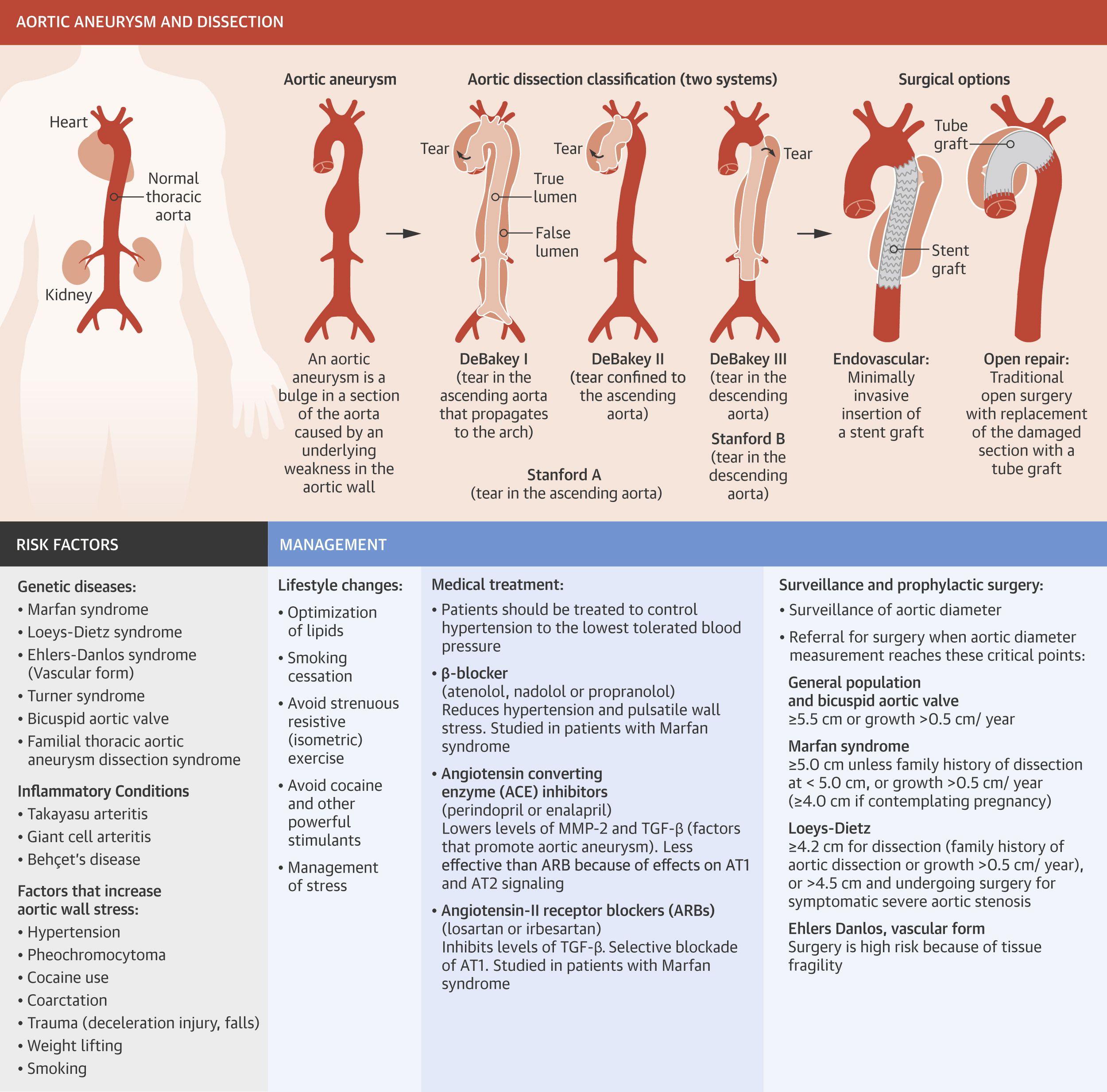 Aortic Pathologies Explained