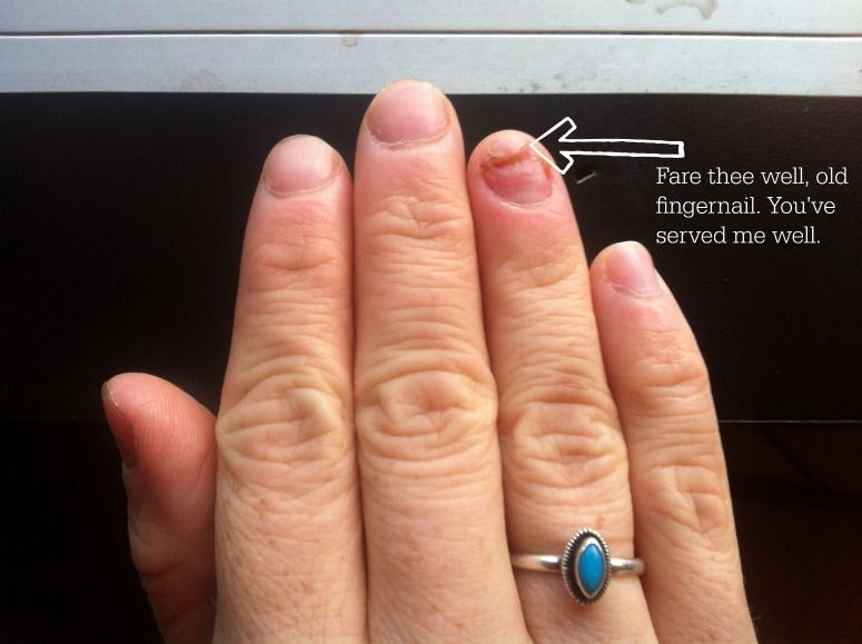 How I Healed My Infected Finger without Antibiotics | Finger, Tea ...