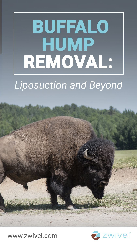 Buffalo hump removal liposuction and beyond buffalo