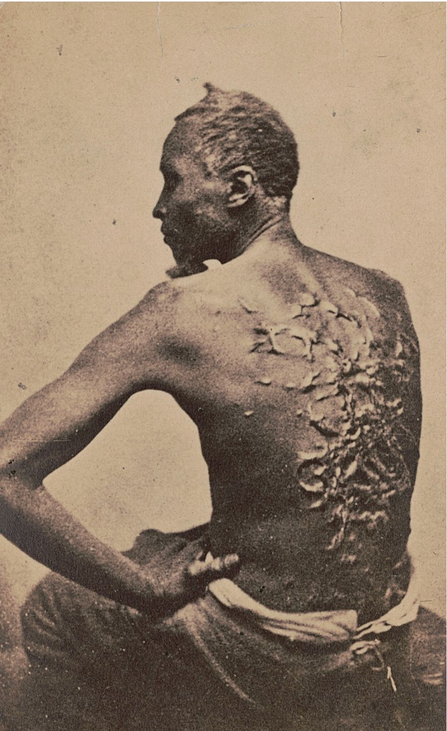 A photograph taken at a medical examination of a man known ...