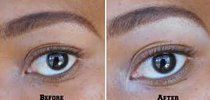 how to change your eye color - Eye Color Change Surgery Before And After