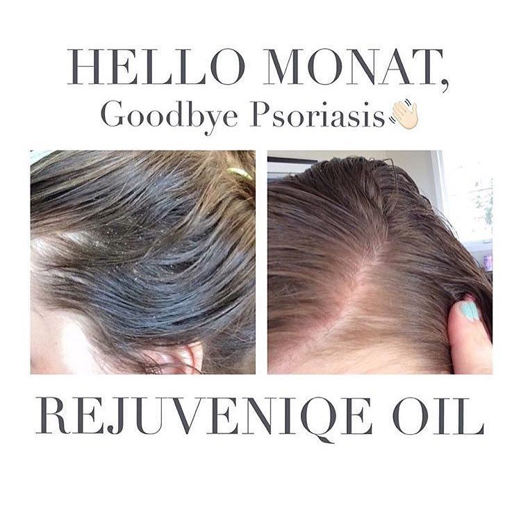 You Know What Else Besides Hair Growth Rejuveniqe Oil Is Good For Psoriasis Look At Those Results Your Scalp Drinks Up Th Monat Hair Hair Care Healthy Hair