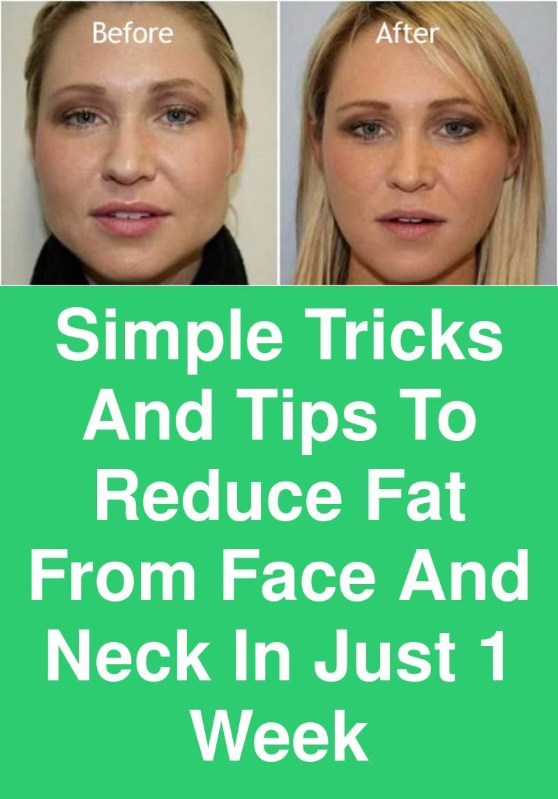 Simple Tricks And Tips To Reduce Fat From Face And Neck In Just 1