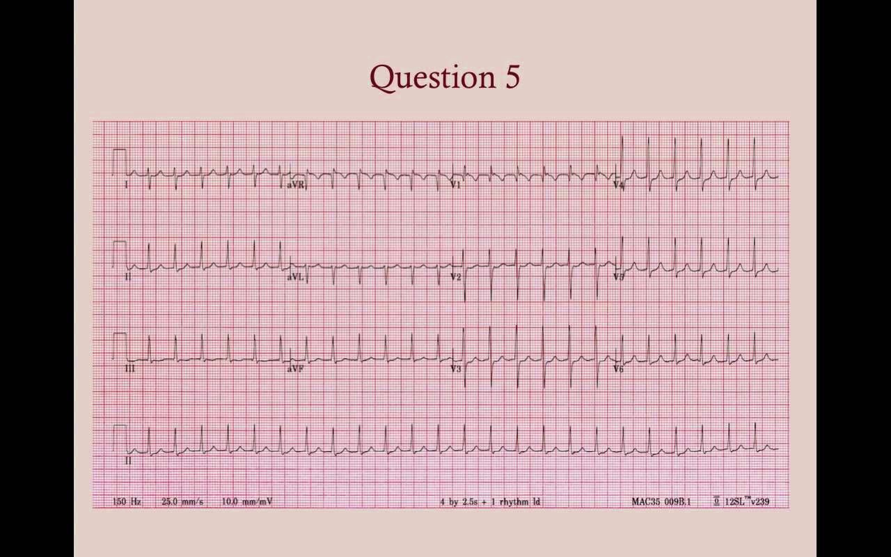 Cardiology Review Questions - CRASH! USMLE Step 2 and 3