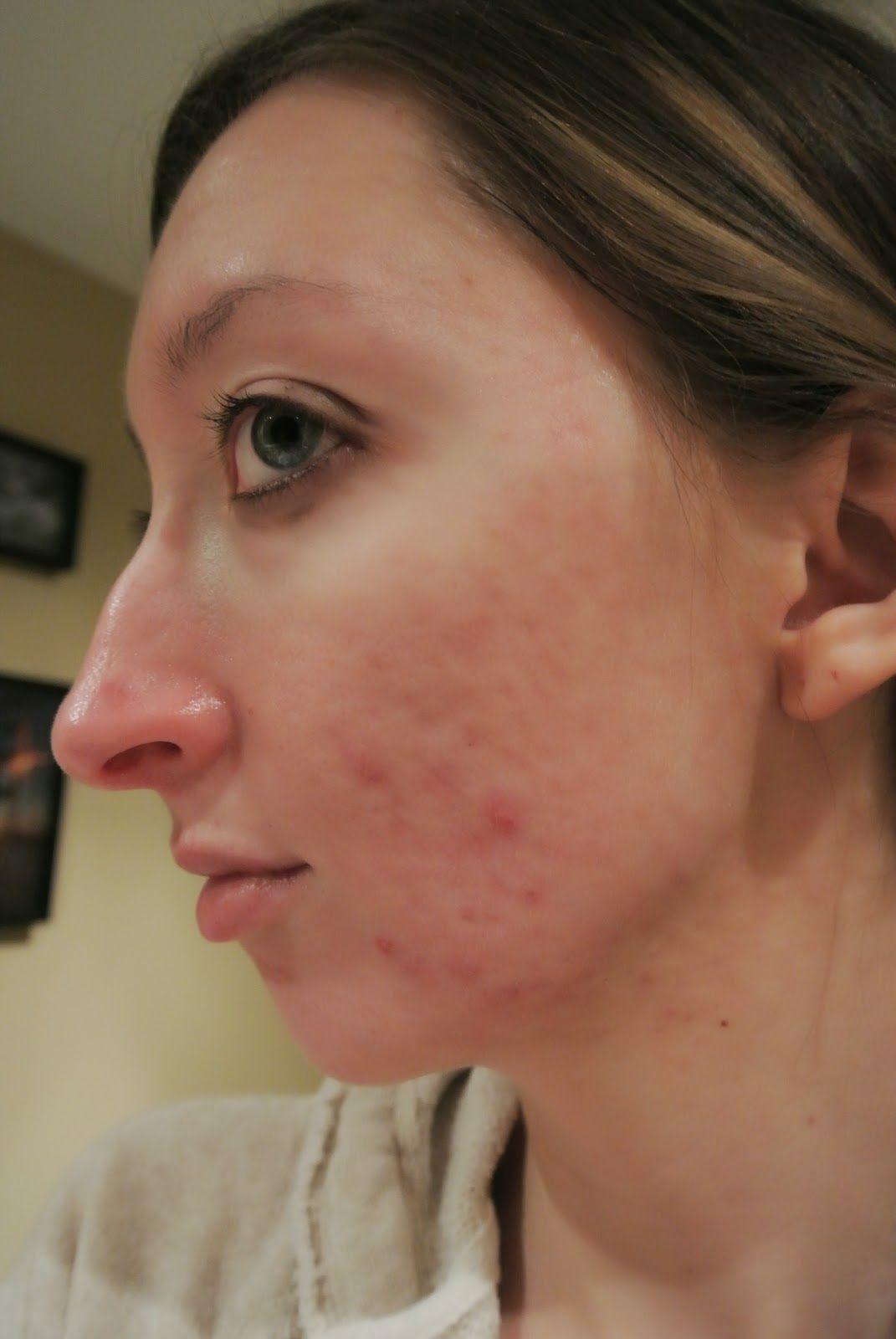 cystic acne accutane not working