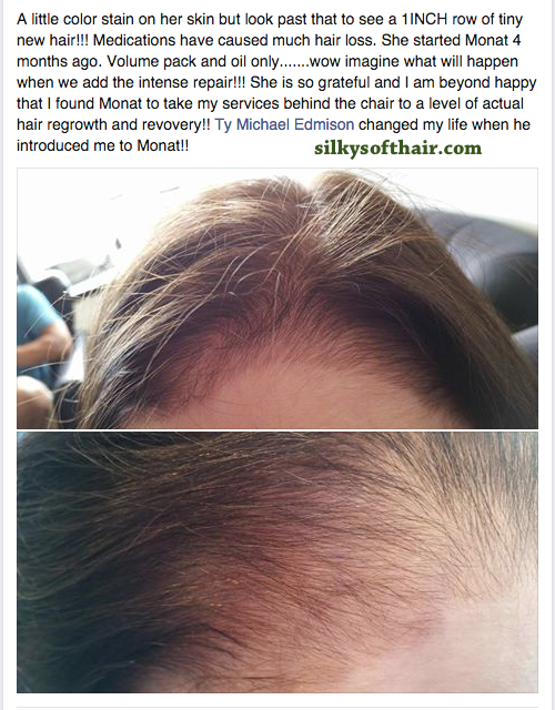 Are your medications causing hair loss? Monat is a