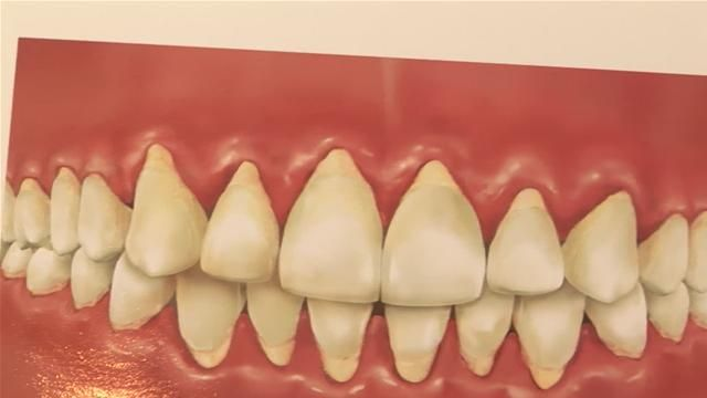 How To Get Rid Of Periodontal Disease Naturally
