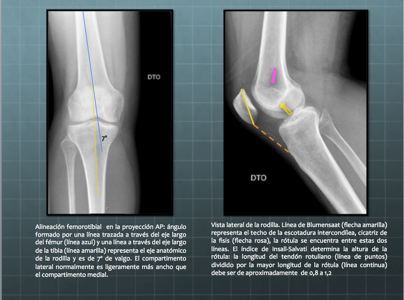 SERAM 2014 / S-0507 / Valoración radiológica de la rodilla: anatomía ...