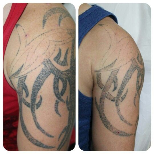 Before And After 1 Session At Remove Inc Laser Tattoo Removal Laser Tattoo Skin Color Tattoos Tattoo Removal
