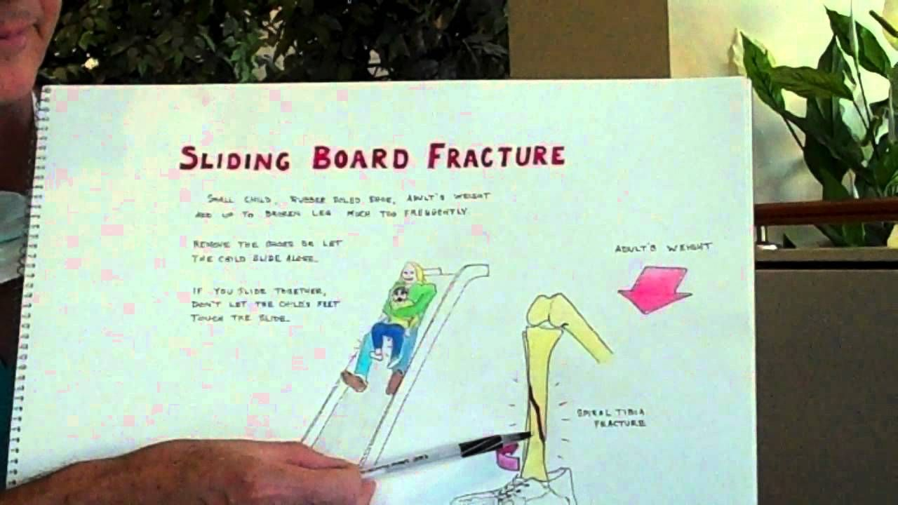 Learn How To Avoid Fractures On Sliding Boards Safety Tip Please Do Not Use Slides With A Child On Your La Parenting Help Reflective Practice Medical Center