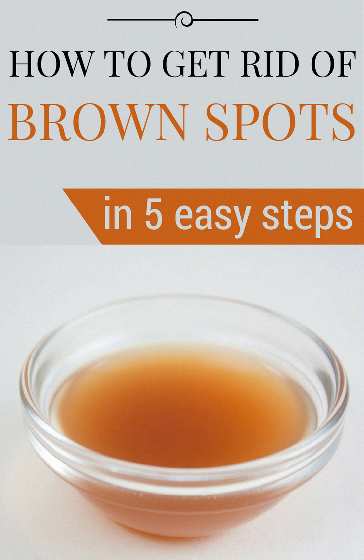 Tips on how to Get rid of Brown Spots on Face Normally #Fitness #OldAgeBrownSpots #BrownSunSpotsOnSk...