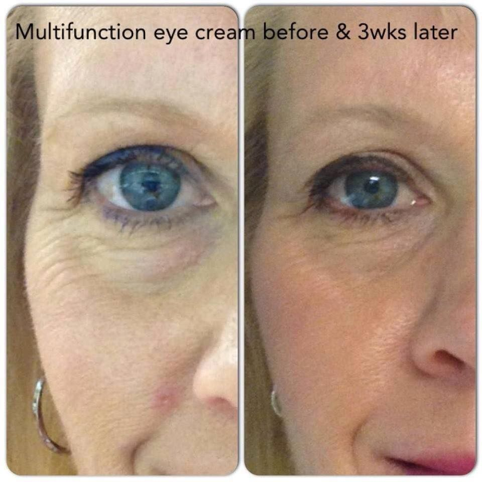 Multi Function Eye Cream Amazing 3 Week Results Dark Circles