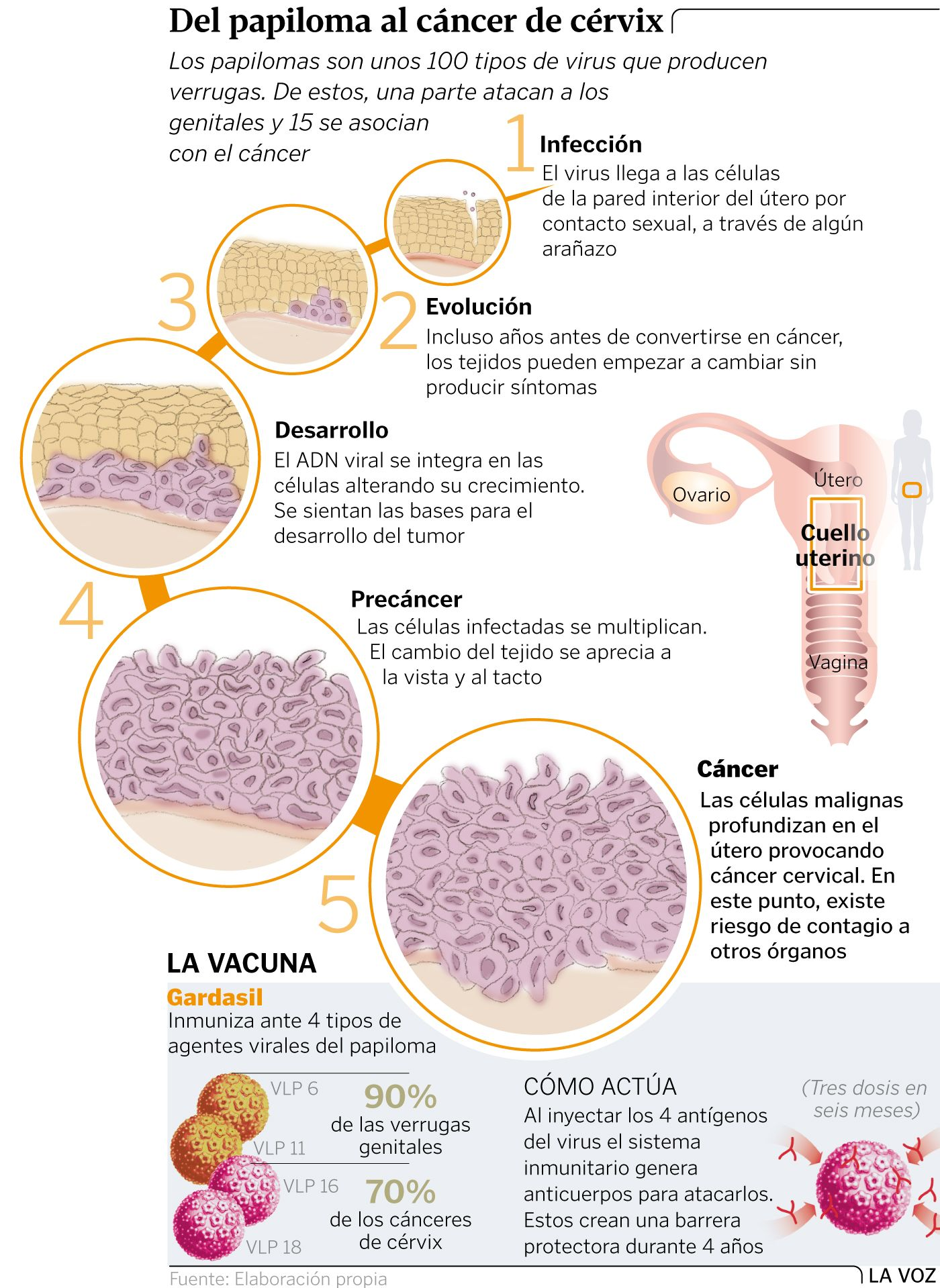 papiloma genital cancer