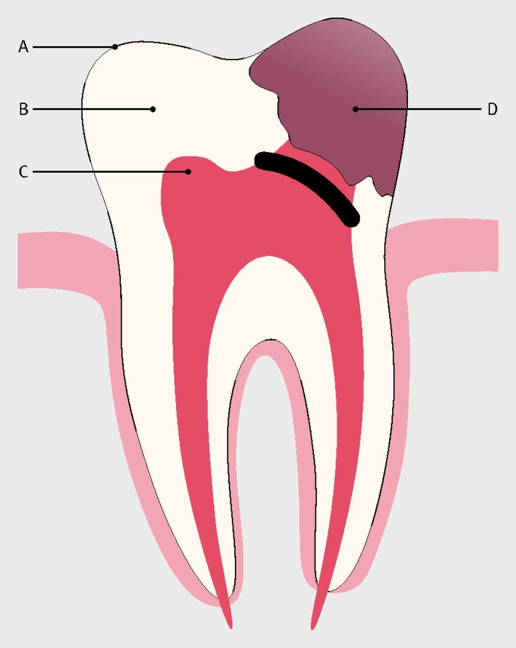Dental anatomy, decay, and pain. The crown of a tooth is made up of ...