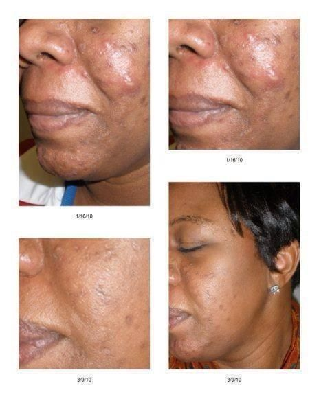 Amazing Unblemish Results Rodan And Fields Exposed Skin Care Post Acne Marks