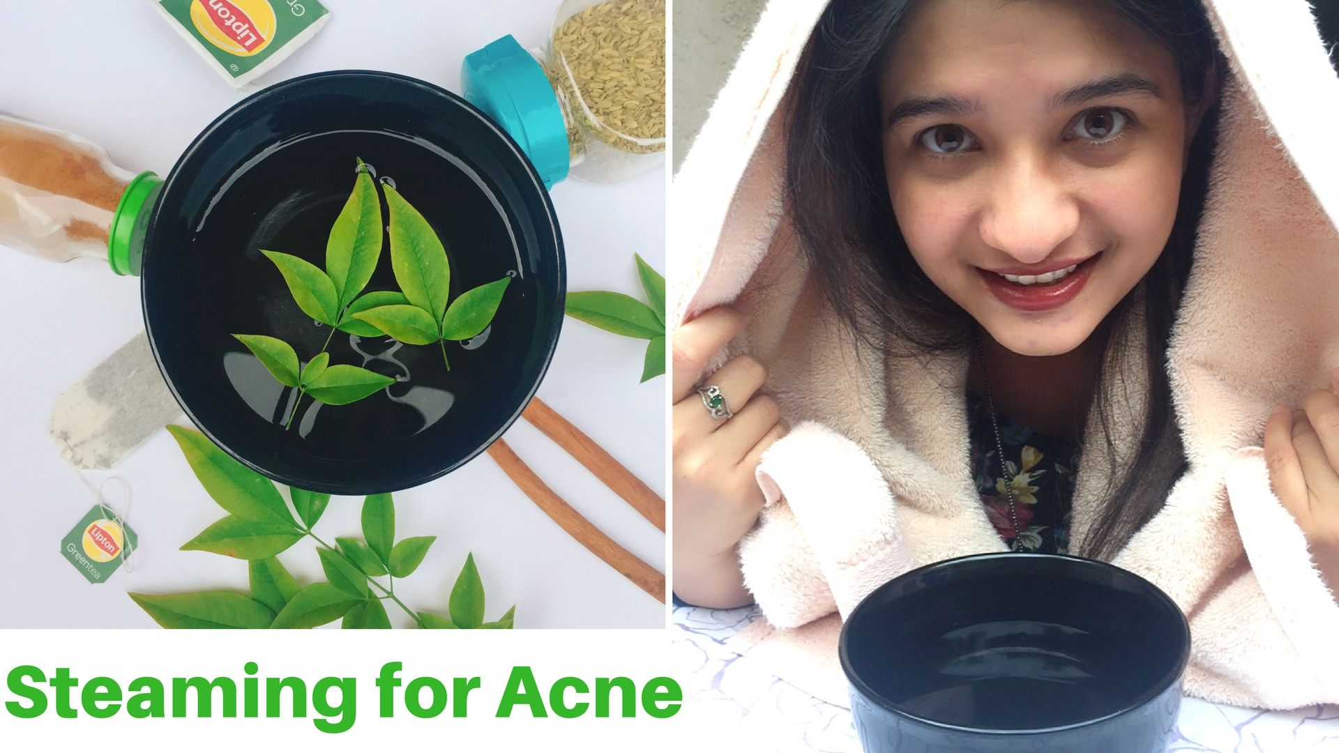 Steaming For Acne Prone Skin In Hindi Steaming At Home Steam