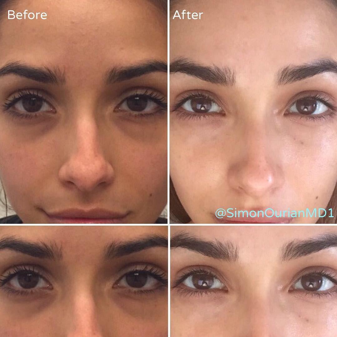 Permanent Makeup For Under Eye Circles | Saubhaya Makeup