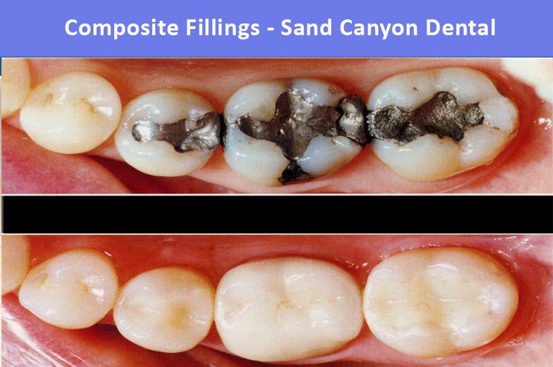 Composite Fillings In Irvine Ca Composite Fillings Dental Dental Restoration