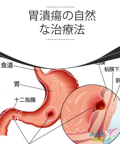 胃潰瘍の自然な治療法 自然療法 健康 治療