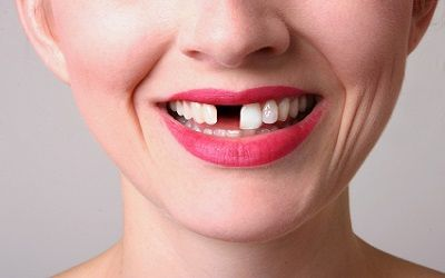 Kết quả hình ảnh cho Dental aesthetics and related issues teeth