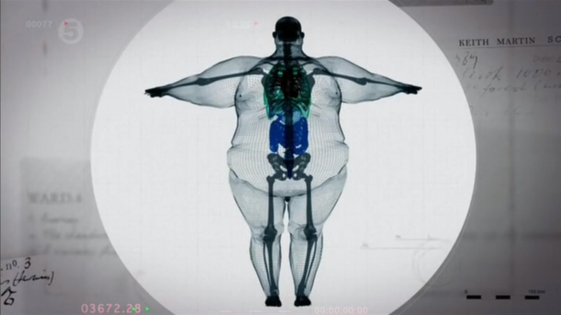 X-ray pohľad na muža 300 kilogramov v 22 neuveriteľné fotografií ...