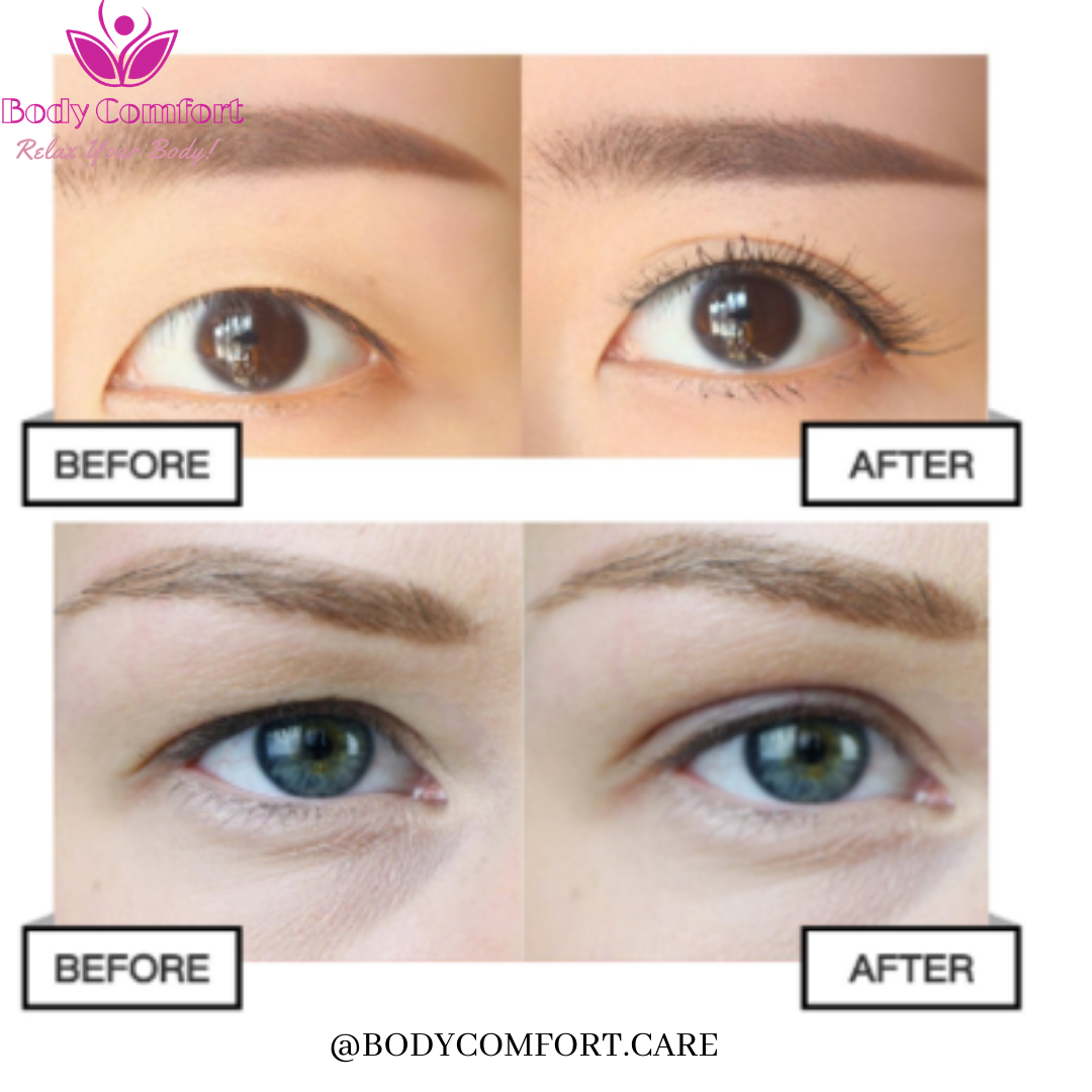 ba62a9e8bcf78b4766715f1aa375d3c0 - How To Get Rid Of Double Eyelids Without Surgery
