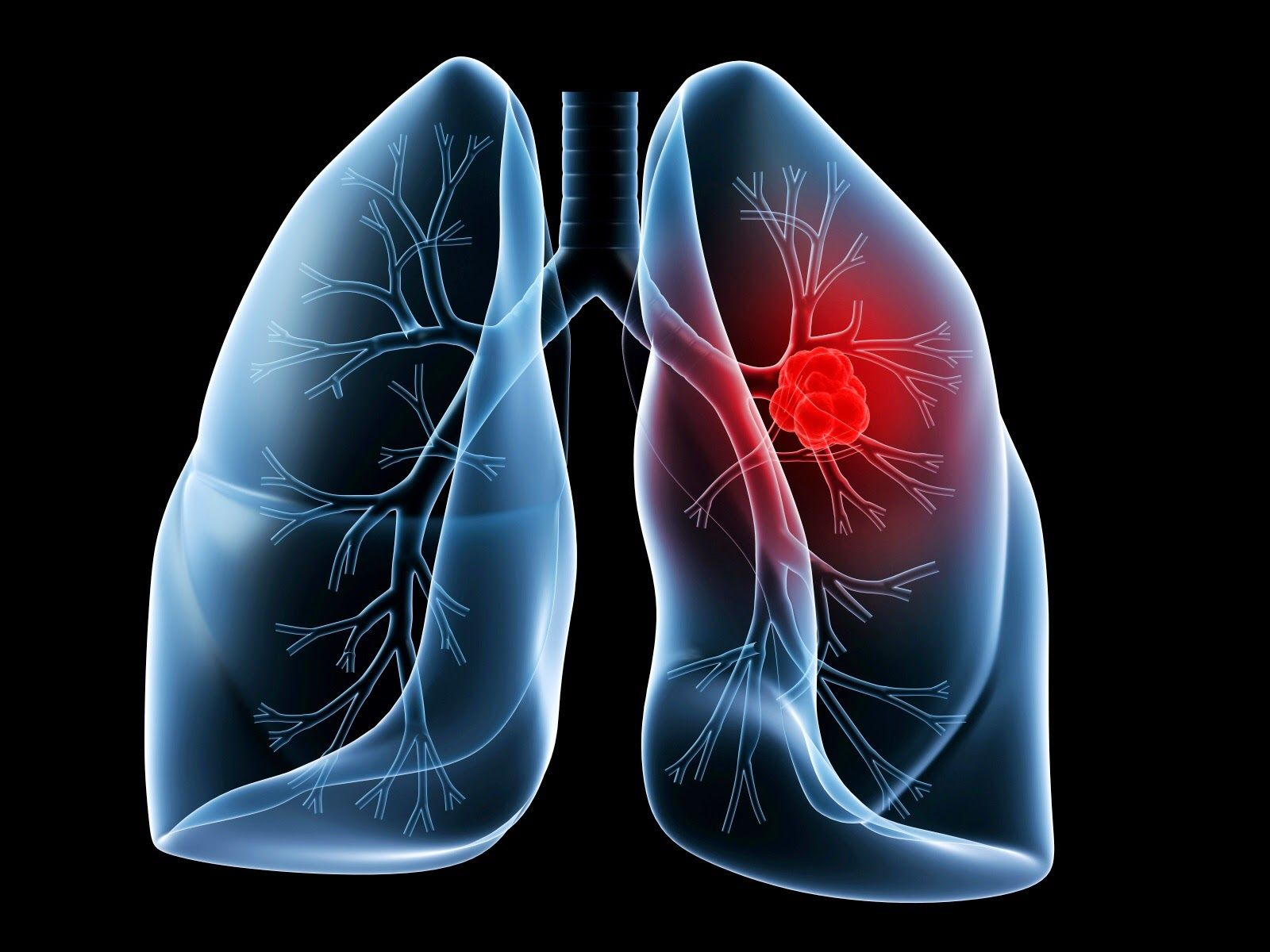 PURIFICACION DE AIRE AIRLIFE te dice. Que es el cáncer pulmonar Es el cáncer que