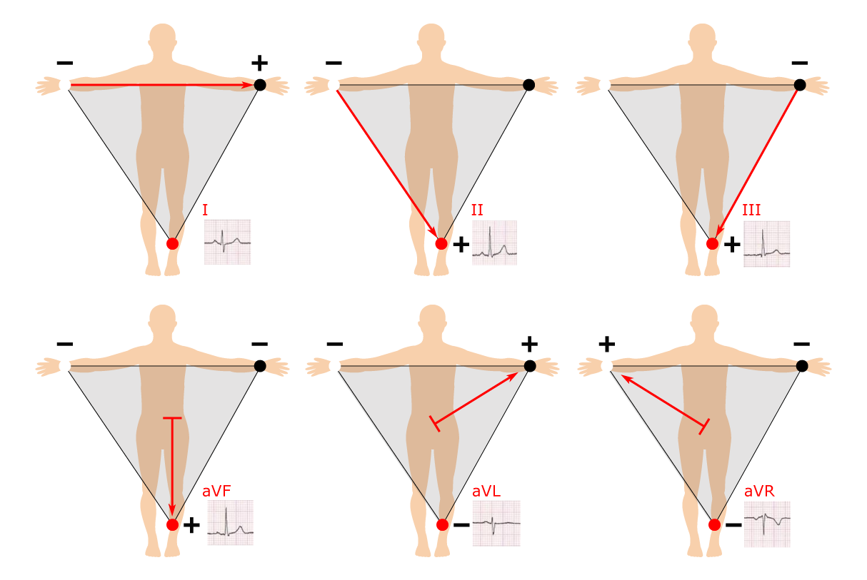 small resolution of 12 lead ecg placement guide with illustrations