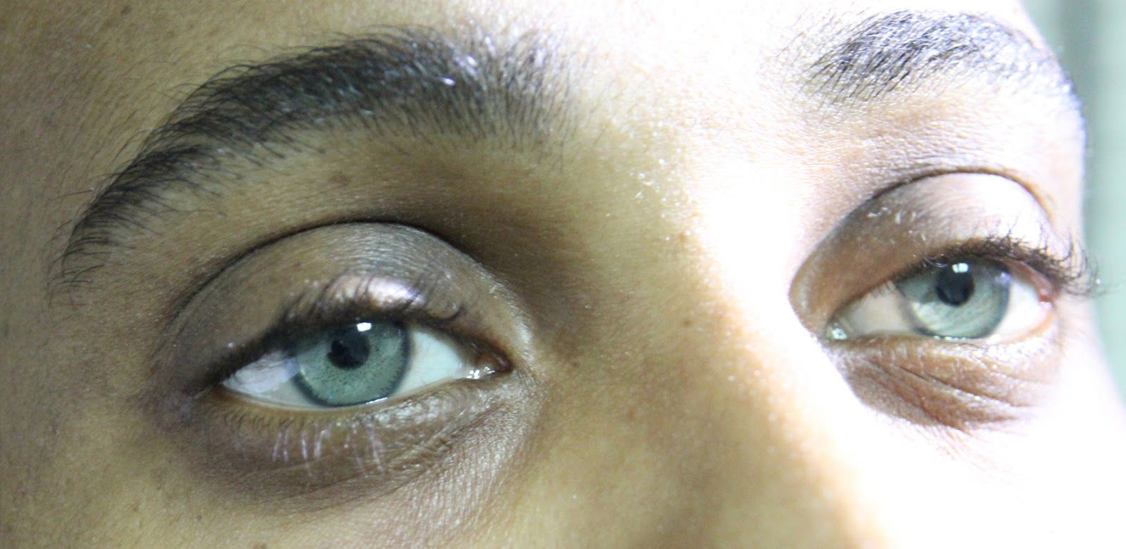 Laser Surgery to Change Eye Color  #coloredeyecontacts