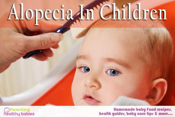 Hair loss due to alopecia in children sign symptoms and