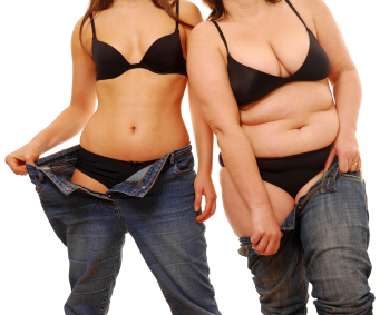 Weight loss following gastric bypass surgery