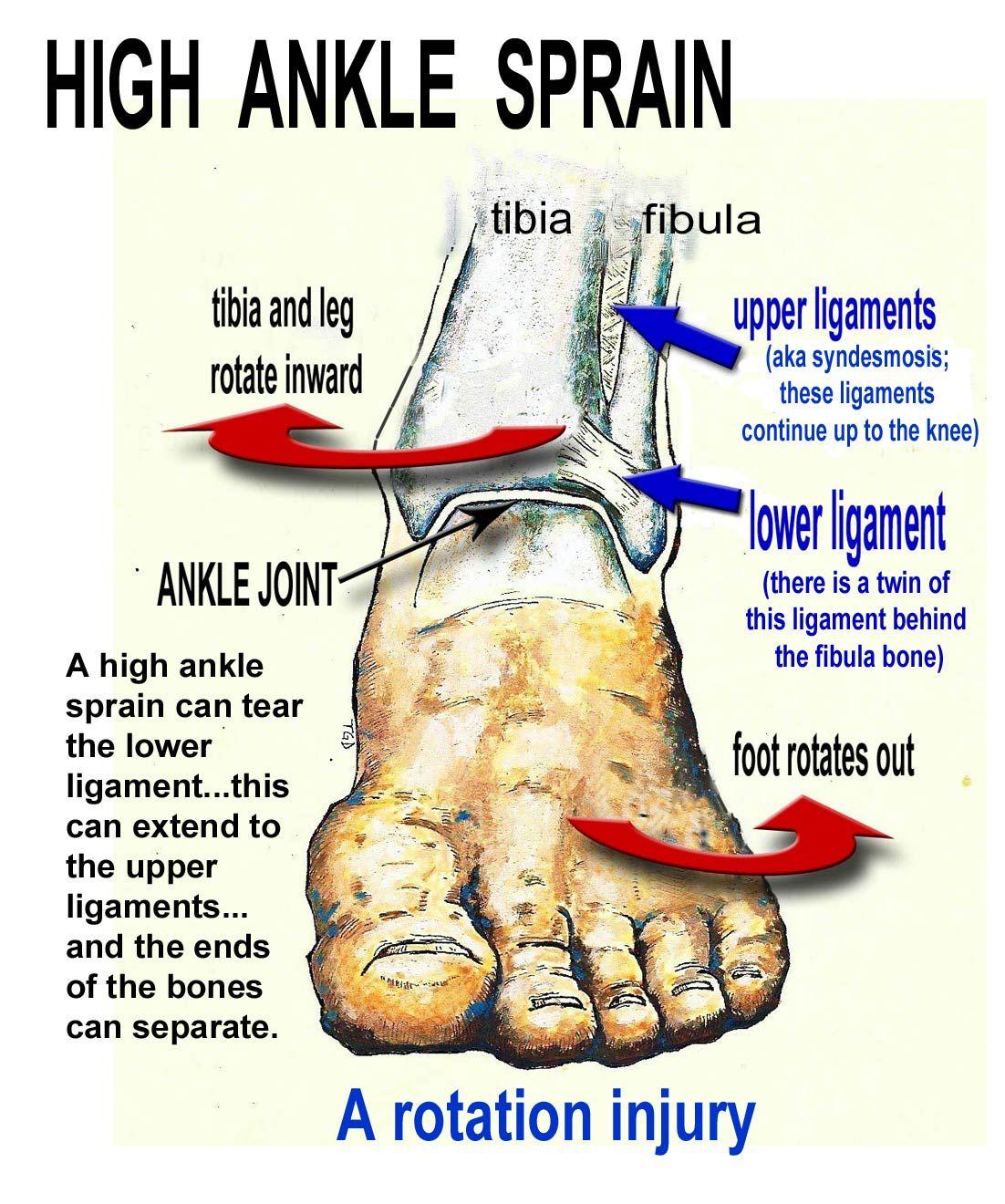 Lateral Foot Sprain - Podiatry, Orthopedics