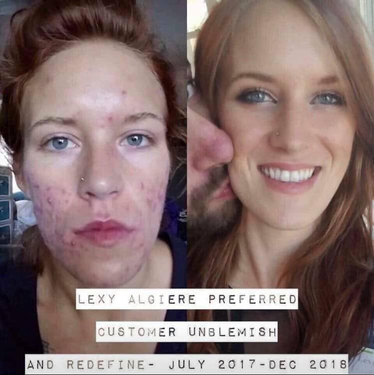 Review Medical Professional Overview Of Acne Therapies Natural Remedy Medication Side Effects And Discover Rodan And Fields Unblemish Life Changing Skincare