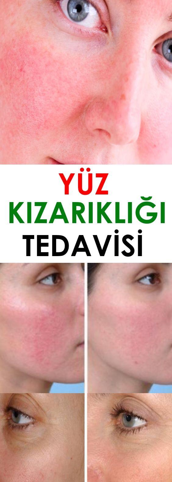 Yüz Kızarıklığı Tedavisi İçin Maske Tarifi