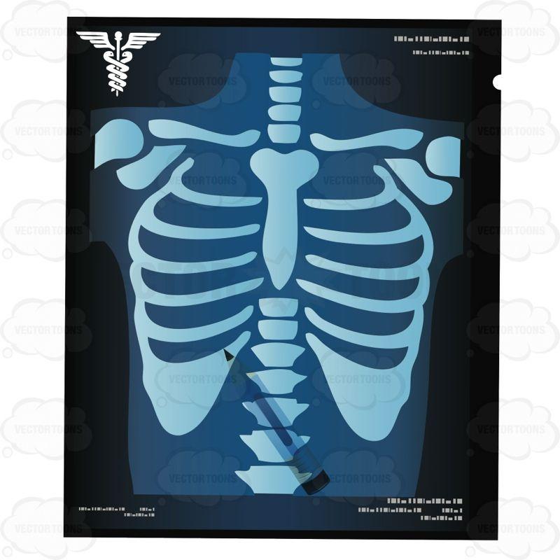 X Ray Of A Chest With A Pencil On The X Ray X Ray Cartoon Clip Art Vector Illustration