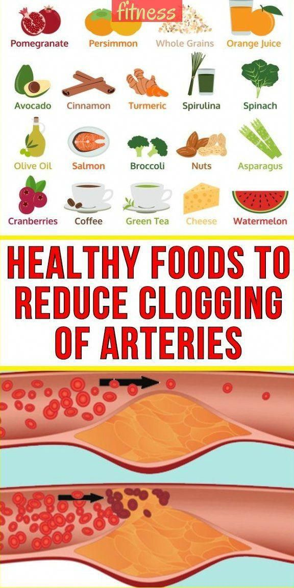 Healthy Foods To Reduce Clogging Of Arteries - Modernife & #fitness gesunde lebe...  Healthy Foods T...