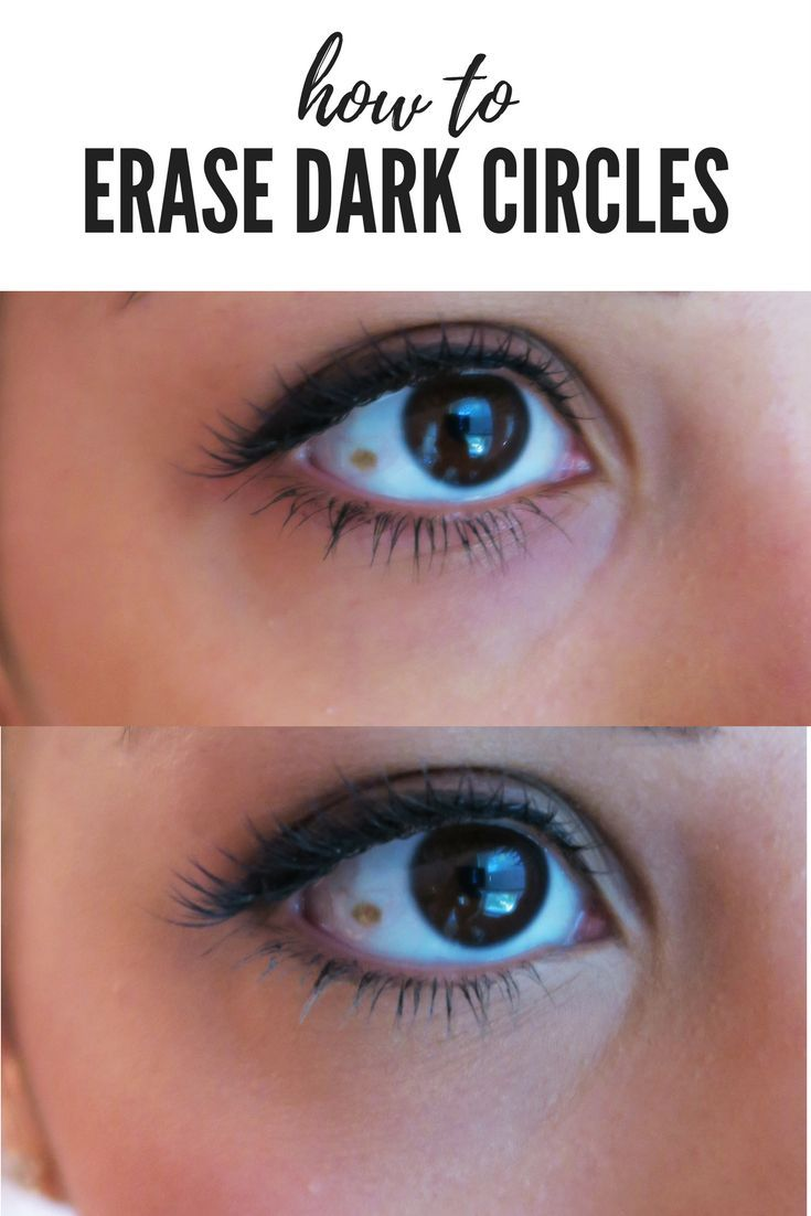 Learn to get rid of dark circles under your eyes. Erase ...