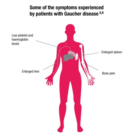 Some Of The Symptoms Gaucher S Disease Enlarged Liver Symptoms